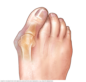 bunion pain bunion surgery